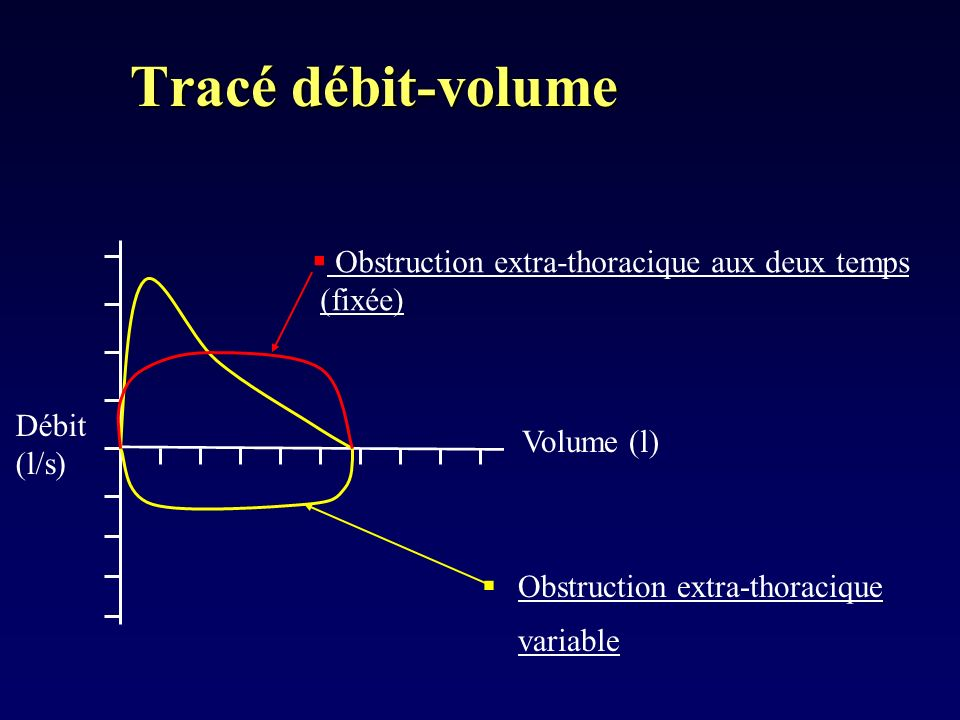 Tracé débit-volume Obstruction extra-thoracique variable Débit (l/s) Volume (l) Obstruction extra-thoracique aux deux temps (fixée)