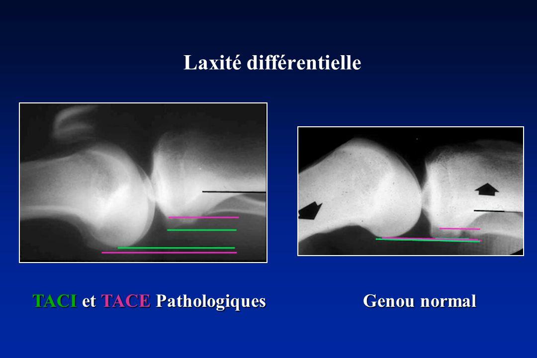 Laxité différentielle TACI et TACE Pathologiques Genou normal TACI et TACE Pathologiques Genou normal
