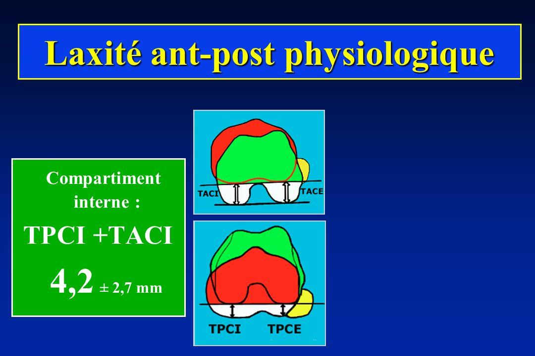 Compartiment interne : TPCI +TACI 4,2 ± 2,7 mm Laxité ant-post physiologique