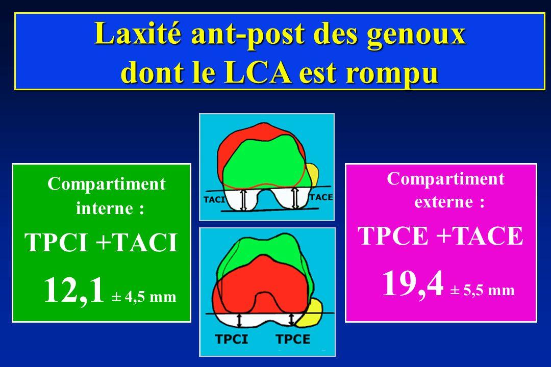 Compartiment interne : TPCI +TACI 12,1 ± 4,5 mm Laxité ant-post des genoux dont le LCA est rompu Compartiment externe : TPCE +TACE 19,4 ± 5,5 mm