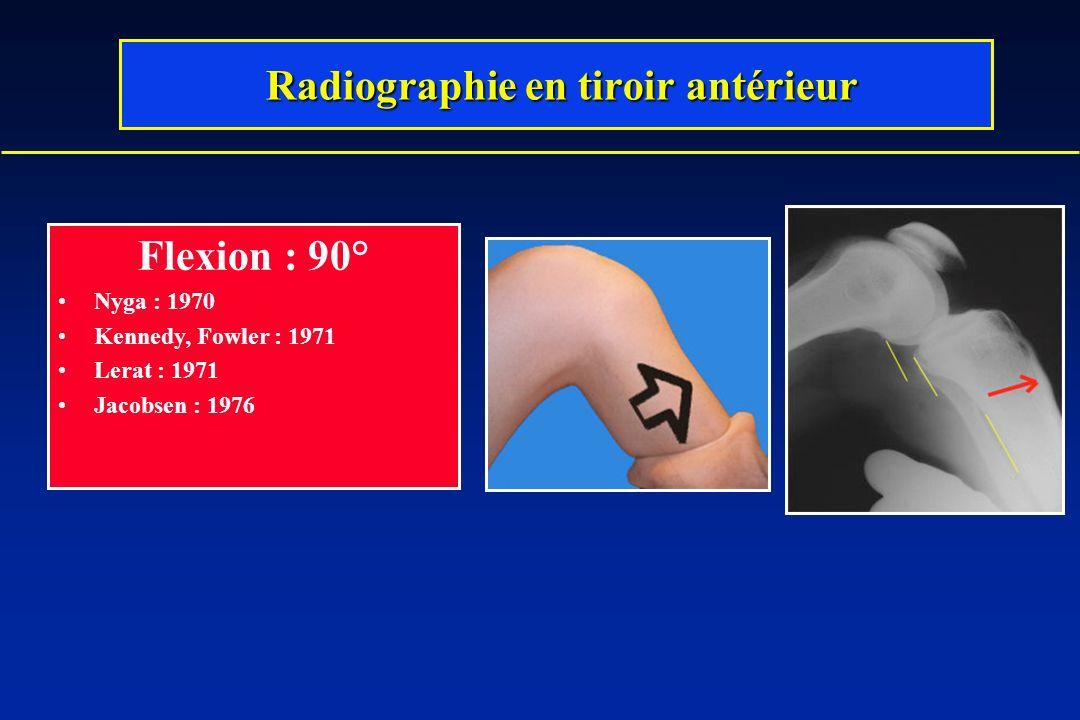 Flexion : 90° Nyga : 1970 Kennedy, Fowler : 1971 Lerat : 1971 Jacobsen : 1976 Radiographie en tiroir antérieur Radiographie en tiroir antérieur