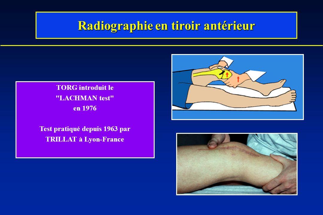 TORG introduit le LACHMAN test en 1976 Test pratiqué depuis 1963 par TRILLAT à Lyon-France Radiographie en tiroir antérieur