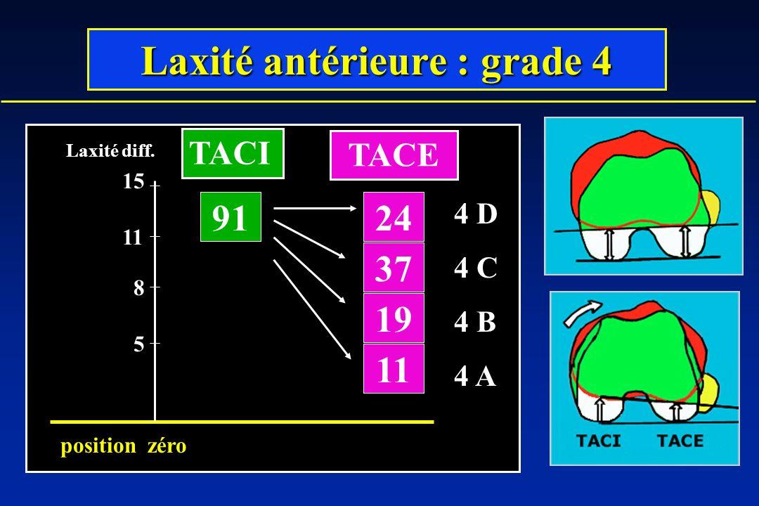 Laxité antérieure : grade 4 91 19 37 24 11 5 8 Laxité diff.