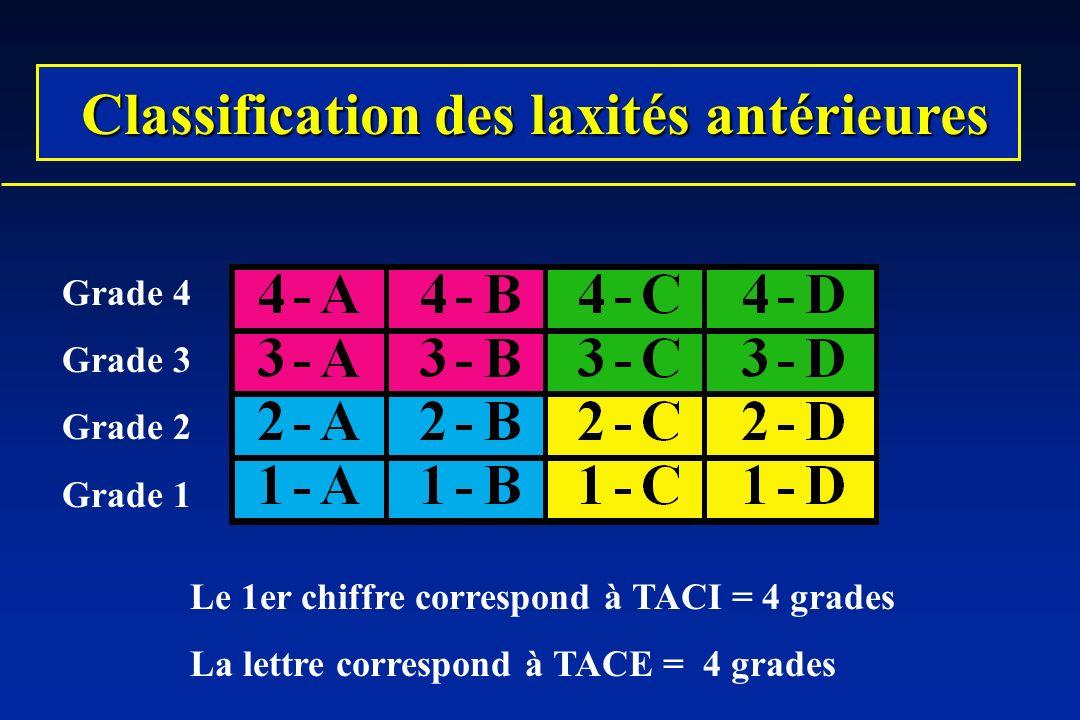 Classification des laxités antérieures Classification des laxités antérieures Grade 4 Grade 3 Grade 2 Grade 1 Le 1er chiffre correspond à TACI = 4 grades La lettre correspond à TACE = 4 grades
