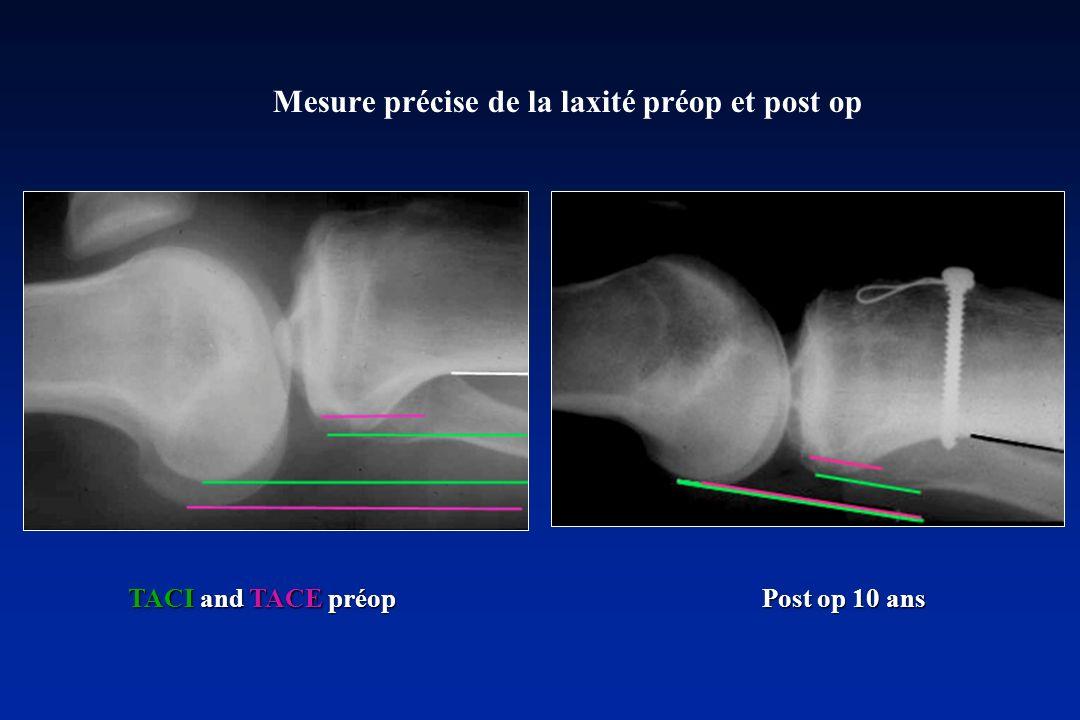 Mesure précise de la laxité préop et post op TACI and TACE préop Post op 10 ans TACI and TACE préop Post op 10 ans
