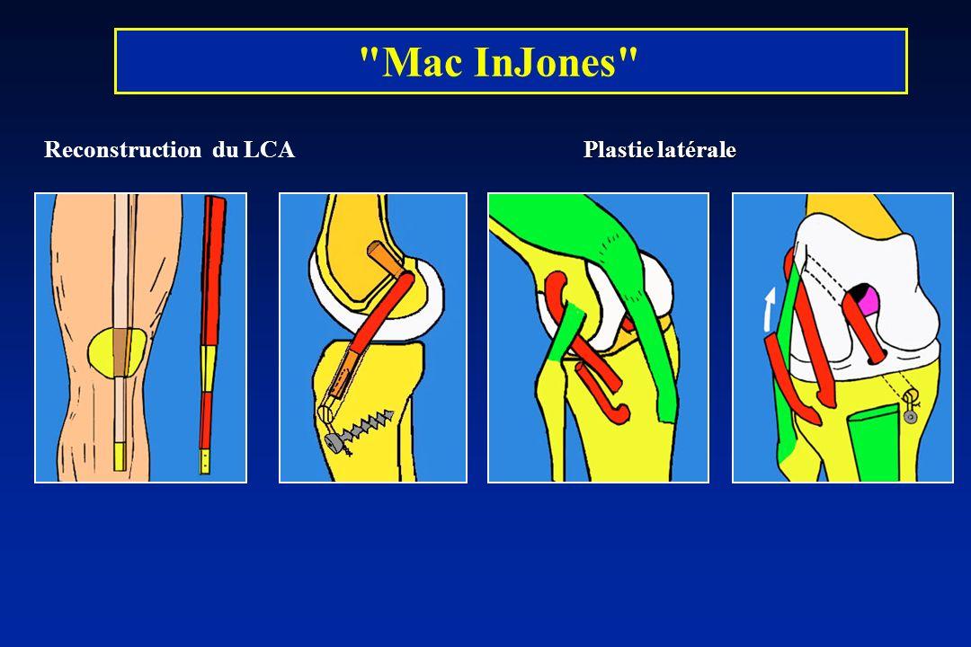 Mac InJones Plastie latérale Reconstruction du LCA Plastie latérale