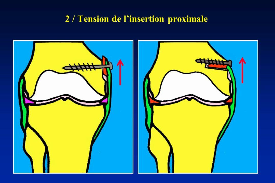 2 / Tension de linsertion proximale