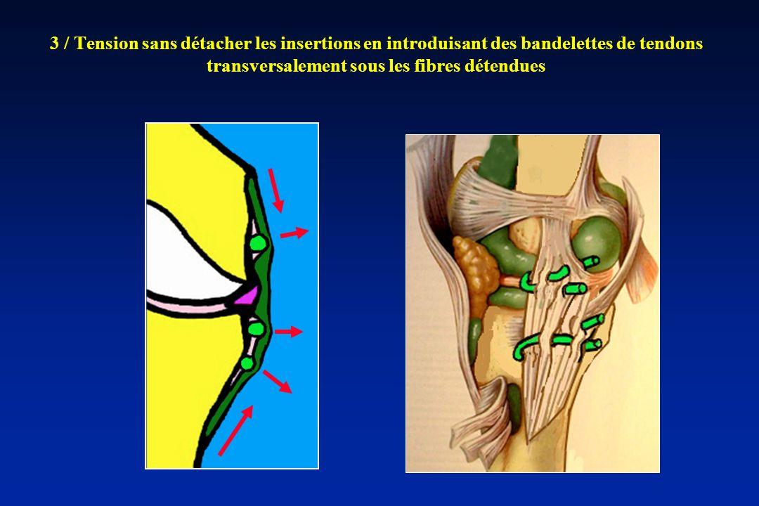 3 / Tension sans détacher les insertions en introduisant des bandelettes de tendons transversalement sous les fibres détendues