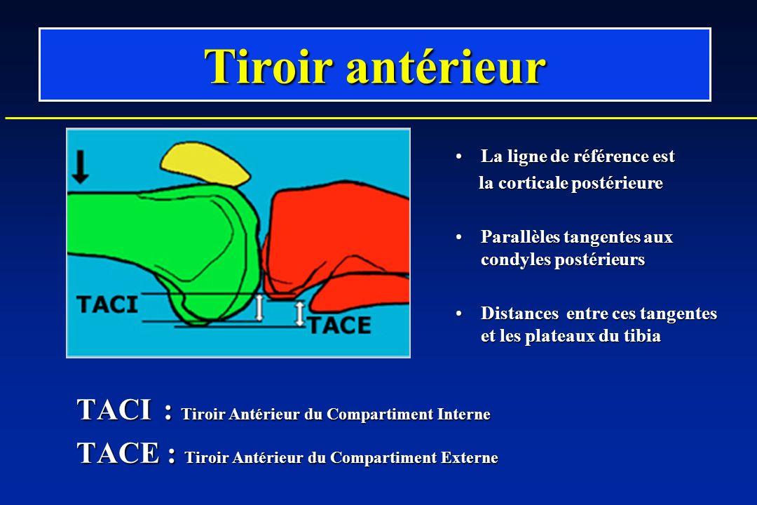 Tiroir antérieur La ligne de référence estLa ligne de référence est la corticale postérieure la corticale postérieure Parallèles tangentes aux condyles postérieursParallèles tangentes aux condyles postérieurs Distances entre ces tangentes et les plateaux du tibiaDistances entre ces tangentes et les plateaux du tibia TACI : Tiroir Antérieur du Compartiment Interne TACI : Tiroir Antérieur du Compartiment Interne TACE : Tiroir Antérieur du Compartiment Externe TACE : Tiroir Antérieur du Compartiment Externe