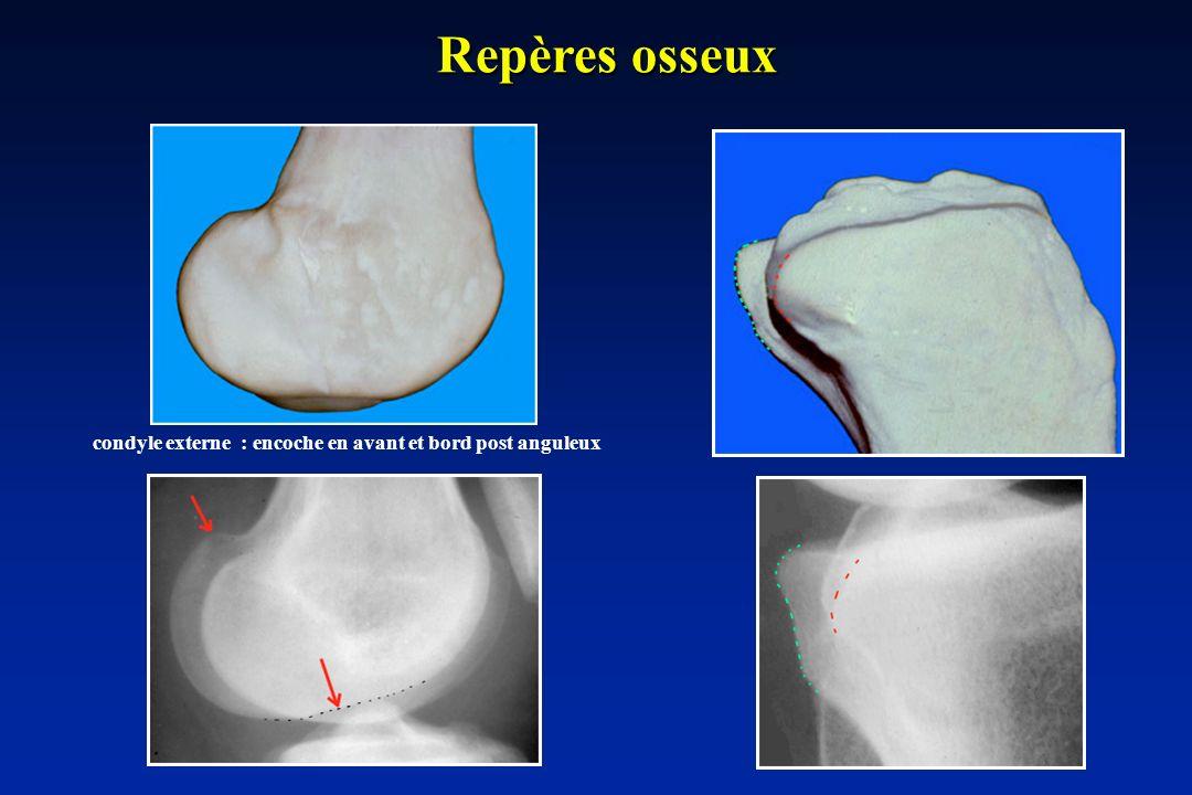 Repères osseux condyle externe : encoche en avant et bord post anguleux