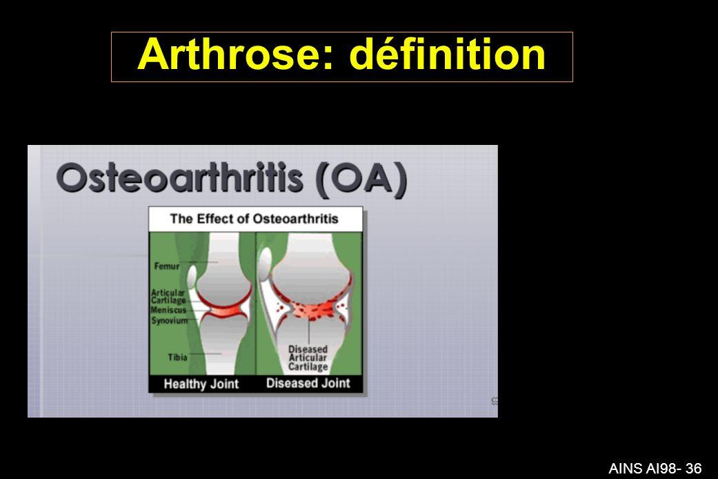 AINS AI98- 36 Arthrose: définition
