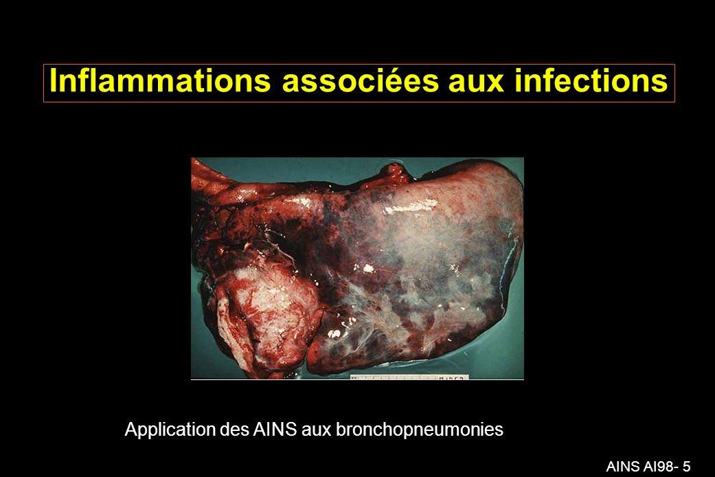 AINS AI98- 5 Inflammations associées aux infections Application des AINS aux bronchopneumonies