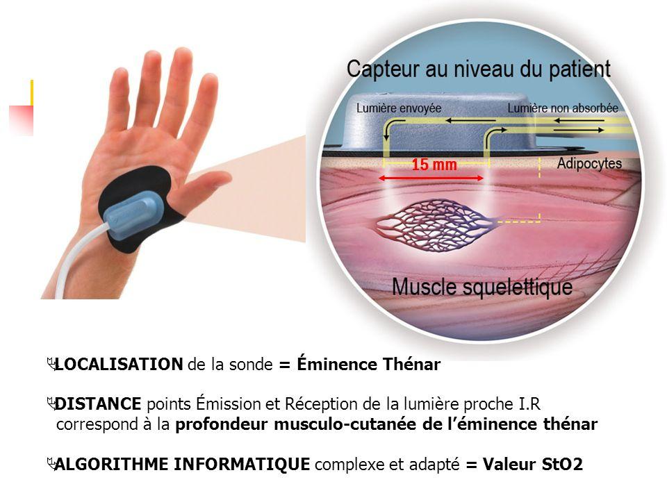 15 mm LOCALISATION de la sonde = Éminence Thénar DISTANCE points Émission et Réception de la lumière proche I.R correspond à la profondeur musculo-cut