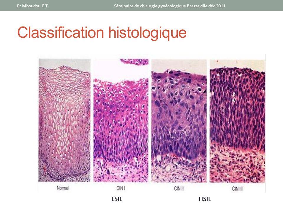 LSILHSIL Séminaire de chirurgie gynécologique Brazzaville déc 2011Pr Mboudou E.T. Classification histologique