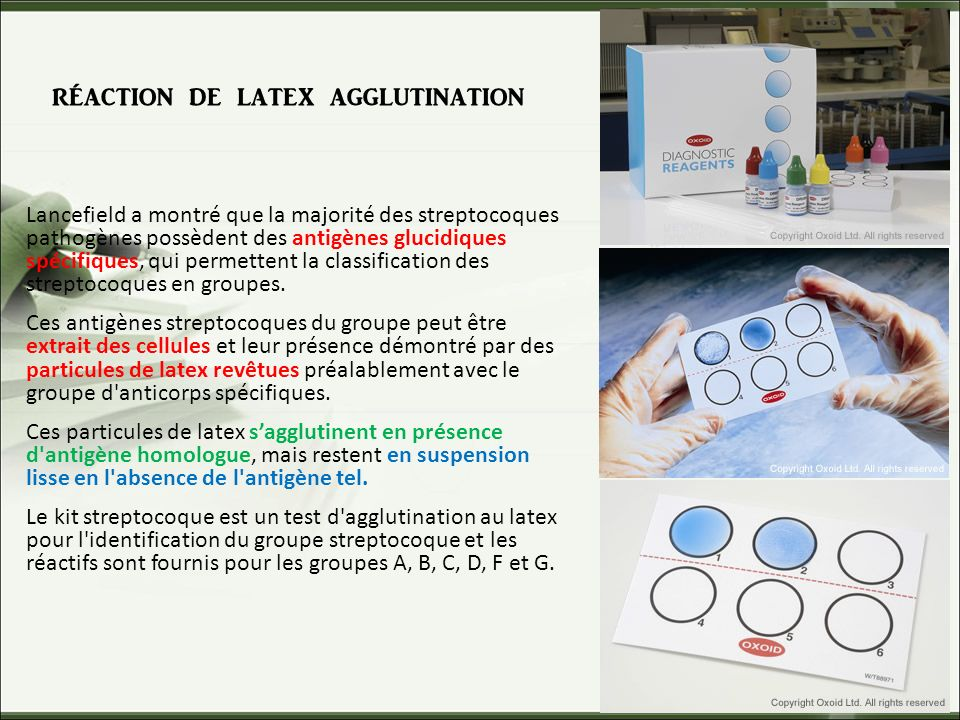 réaction de latex agglutination Lancefield a montré que la majorité des streptocoques pathogènes possèdent des antigènes glucidiques spécifiques, qui permettent la classification des streptocoques en groupes.