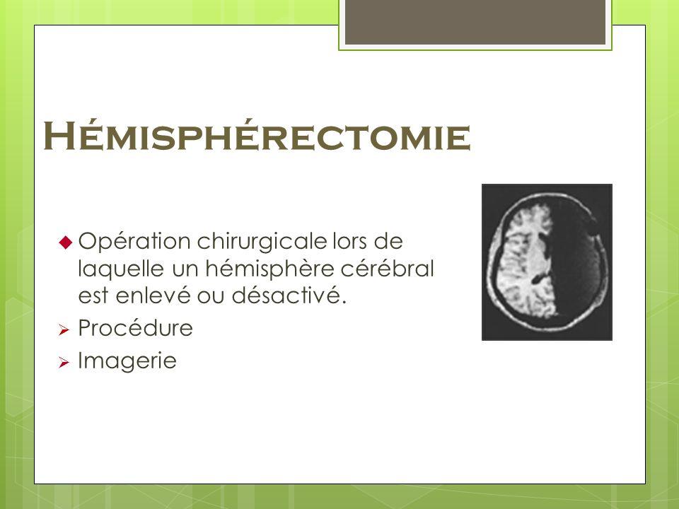 Hémisphérectomie Opération chirurgicale lors de laquelle un hémisphère cérébral est enlevé ou désactivé.