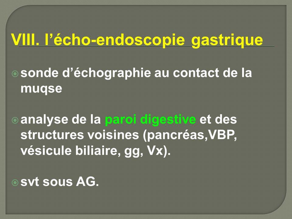 IX.Ulcère gastrique 1.