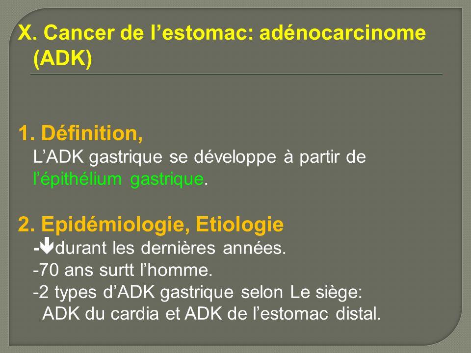 X. Cancer de lestomac: adénocarcinome (ADK) 1. Définition, LADK gastrique se développe à partir de lépithélium gastrique. 2. Epidémiologie, Etiologie