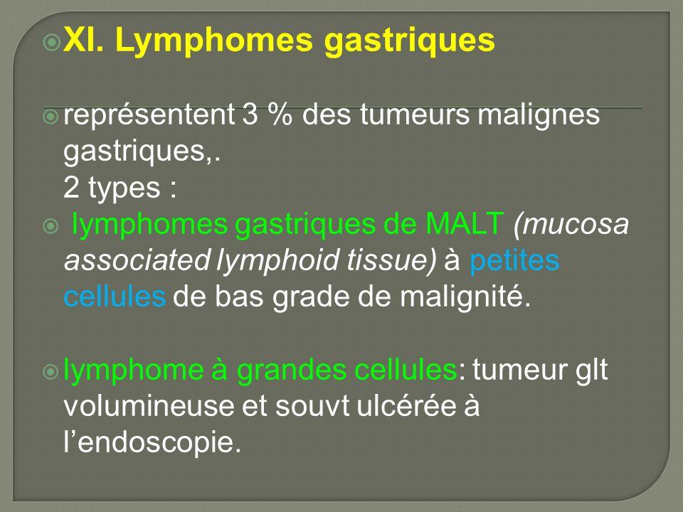 XI. Lymphomes gastriques représentent 3 % des tumeurs malignes gastriques,. 2 types : lymphomes gastriques de MALT (mucosa associated lymphoid tissue)