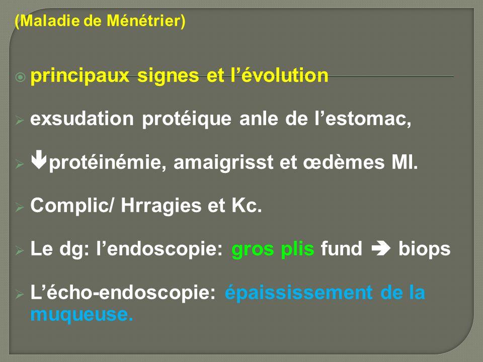 (Maladie de Ménétrier) principaux signes et lévolution exsudation protéique anle de lestomac, protéinémie, amaigrisst et œdèmes MI. Complic/ Hrragies