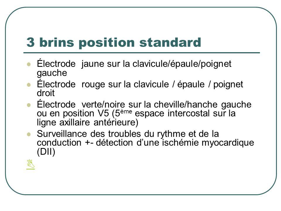 3 brins position standard Électrode jaune sur la clavicule/épaule/poignet gauche Électrode rouge sur la clavicule / épaule / poignet droit Électrode v