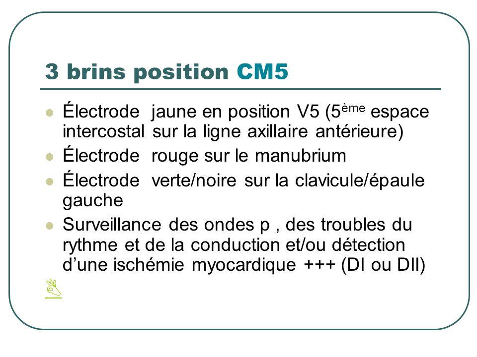 3 brins position CM5 Électrode jaune en position V5 (5 ème espace intercostal sur la ligne axillaire antérieure) Électrode rouge sur le manubrium Élec