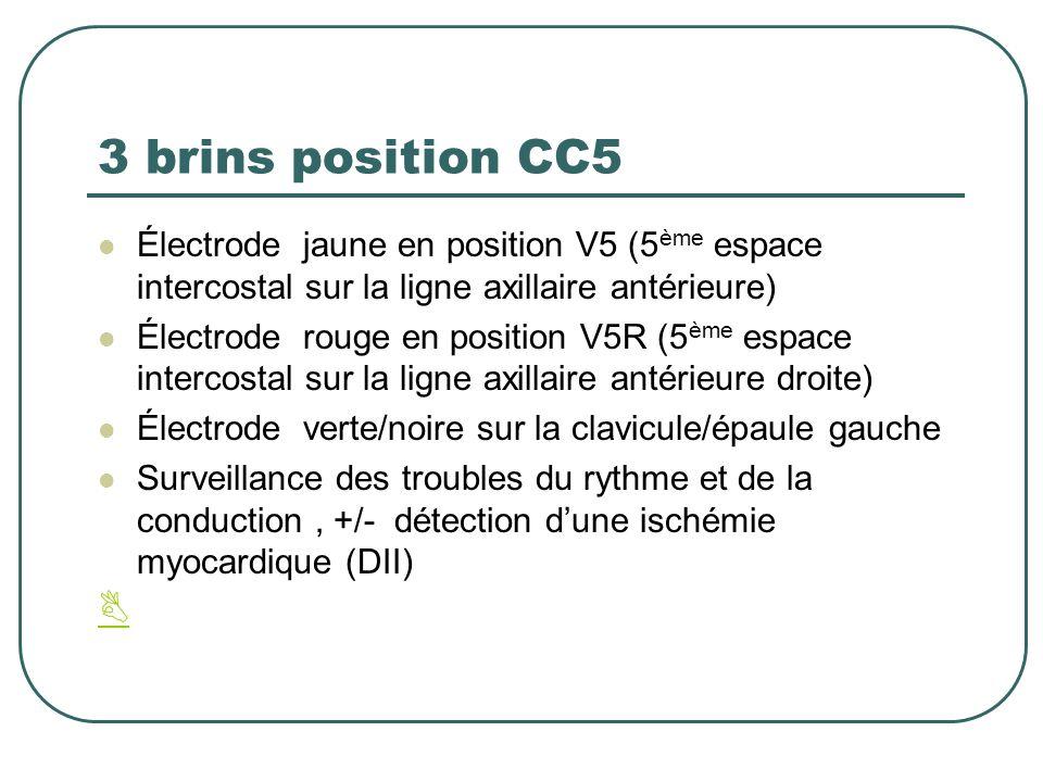 3 brins position CC5 Électrode jaune en position V5 (5 ème espace intercostal sur la ligne axillaire antérieure) Électrode rouge en position V5R (5 èm