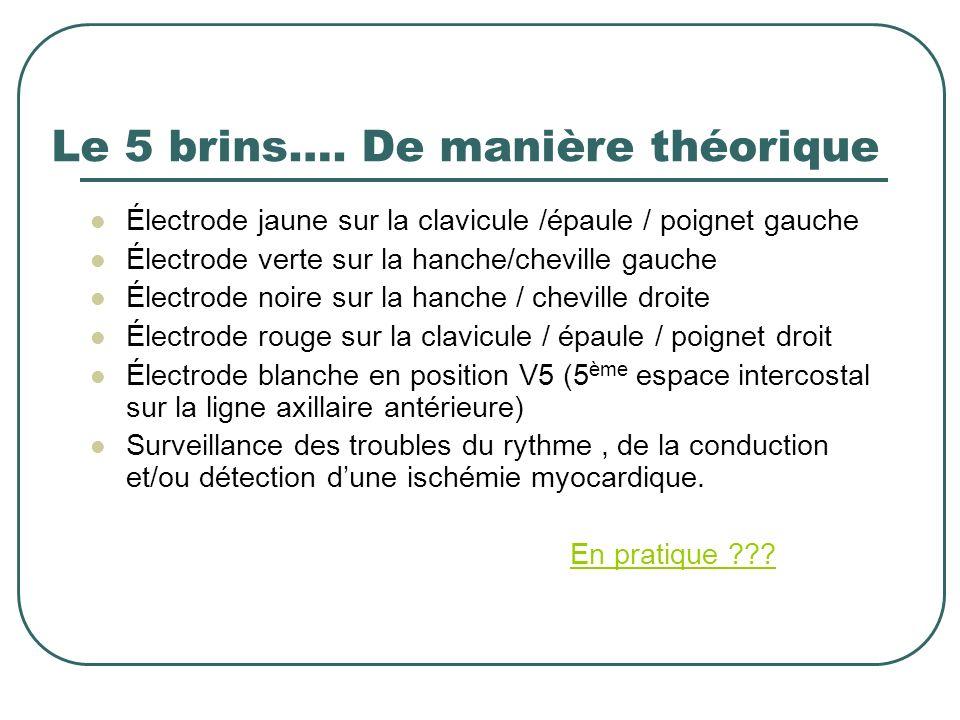 Le 5 brins…. De manière théorique Électrode jaune sur la clavicule /épaule / poignet gauche Électrode verte sur la hanche/cheville gauche Électrode no