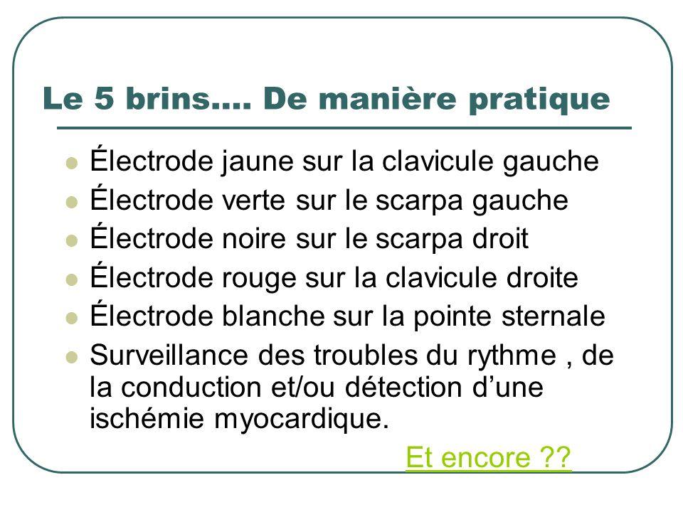 Le 5 brins…. De manière pratique Électrode jaune sur la clavicule gauche Électrode verte sur le scarpa gauche Électrode noire sur le scarpa droit Élec
