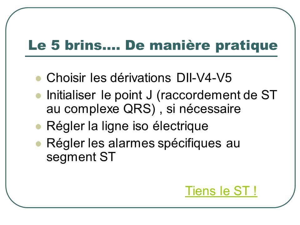 Le 5 brins…. De manière pratique Choisir les dérivations DII-V4-V5 Initialiser le point J (raccordement de ST au complexe QRS), si nécessaire Régler l