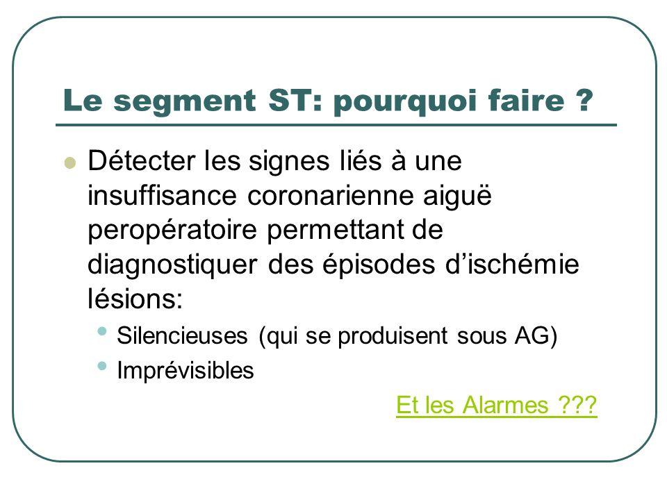 Le segment ST: pourquoi faire ? Détecter les signes liés à une insuffisance coronarienne aiguë peropératoire permettant de diagnostiquer des épisodes
