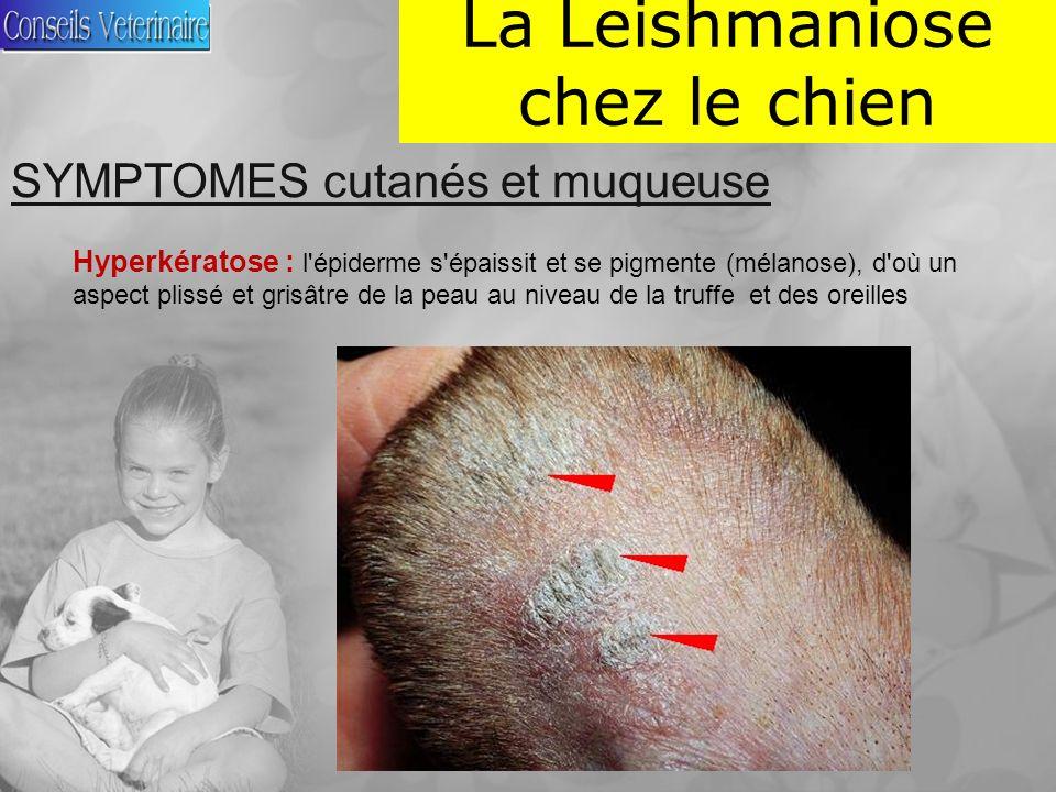 La Leishmaniose chez le chien SYMPTOMES cutanés et muqueuse Hyperkératose : l épiderme s épaissit et se pigmente (mélanose), d où un aspect plissé et grisâtre de la peau au niveau de la truffe et des oreilles