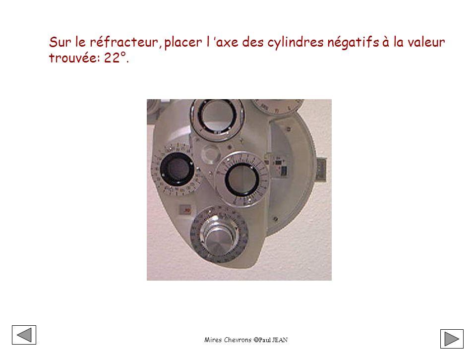 Mires Chevrons Paul JEAN Sur le réfracteur, placer l axe des cylindres négatifs à la valeur trouvée: 22°.