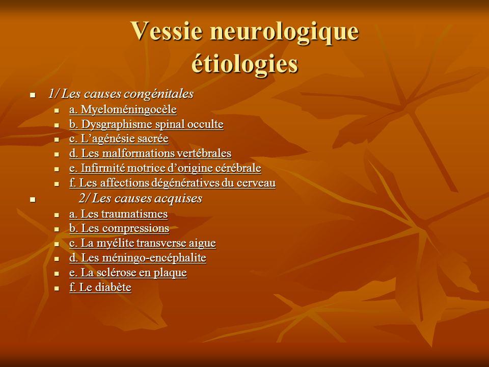 Vessie neurologique étiologies 1/ Les causes congénitales 1/ Les causes congénitales a. Myeloméningocèle a. Myeloméningocèle b. Dysgraphisme spinal oc