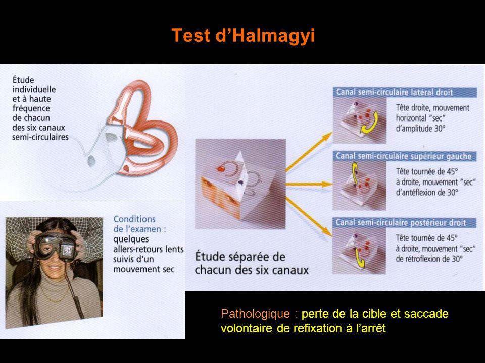 Test dHalmagyi Pathologique : perte de la cible et saccade volontaire de refixation à larrêt