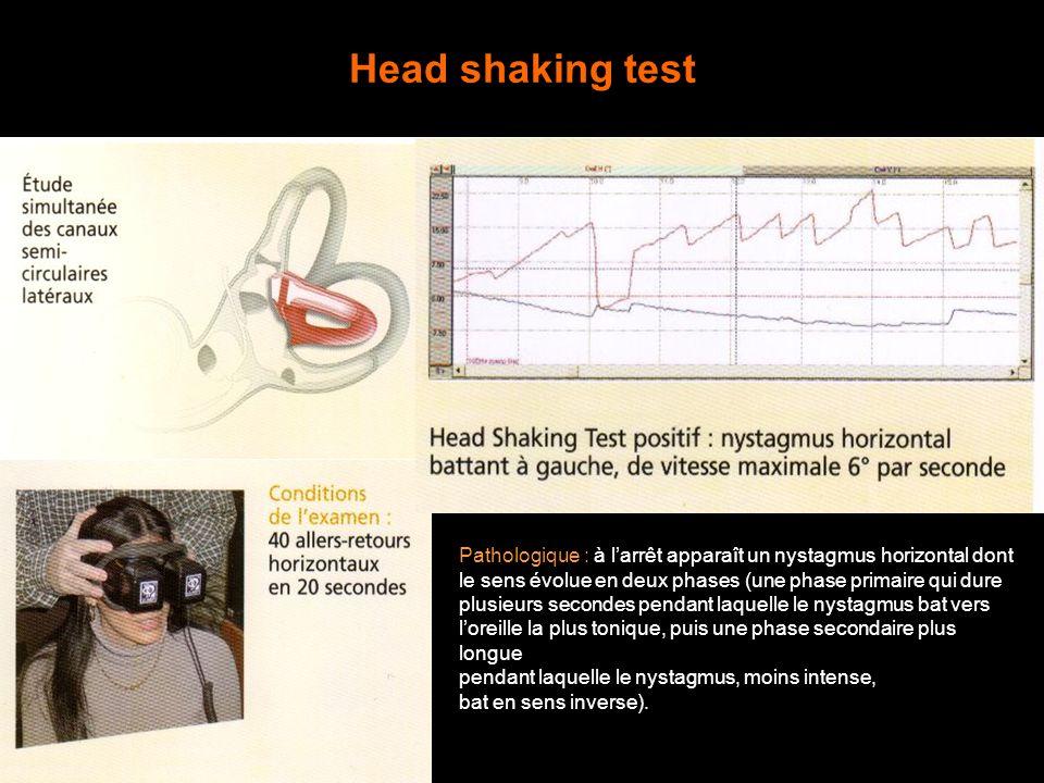 Head shaking test Pathologique : à larrêt apparaît un nystagmus horizontal dont le sens évolue en deux phases (une phase primaire qui dure plusieurs s