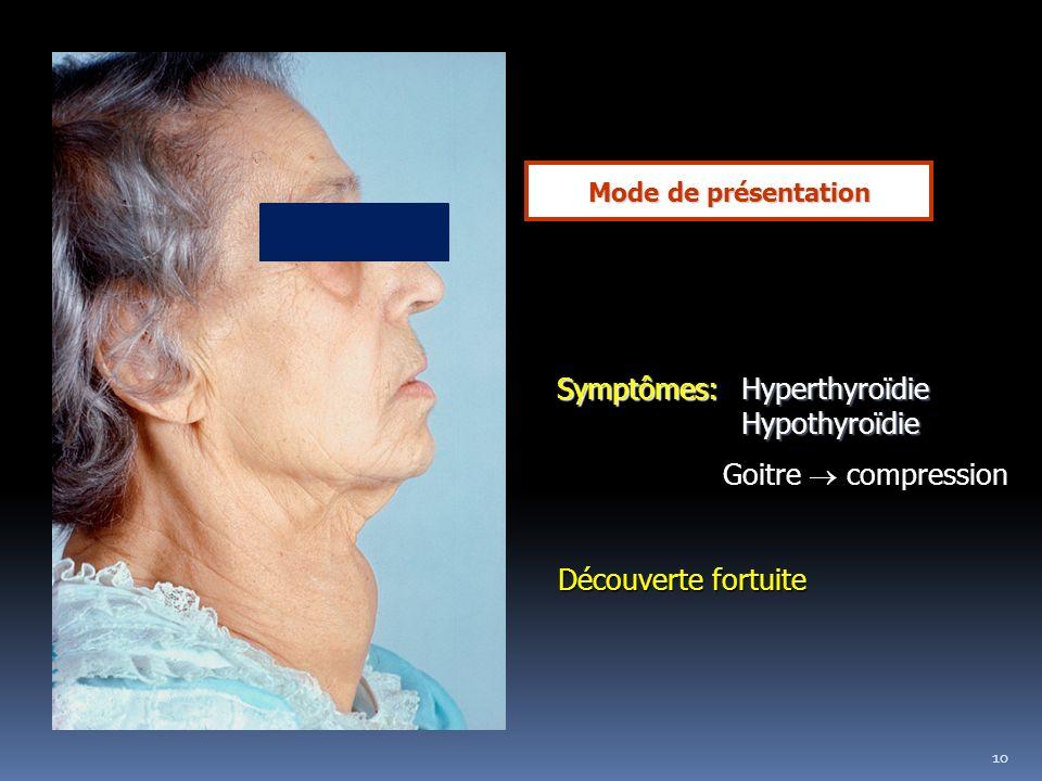10 Mode de présentation Symptômes: Hyperthyroïdie Symptômes: Hyperthyroïdie Hypothyroïdie Hypothyroïdie Goitre compression Découverte fortuite