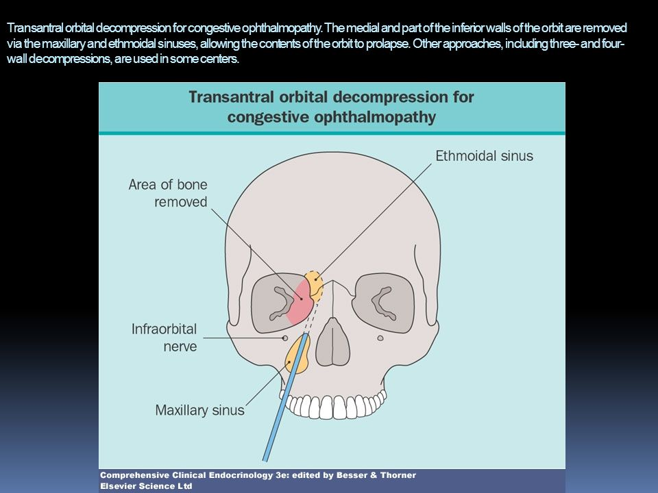 Transantral orbital decompression for congestive ophthalmopathy. The medial and part of the inferior walls of the orbit are removed via the maxillary