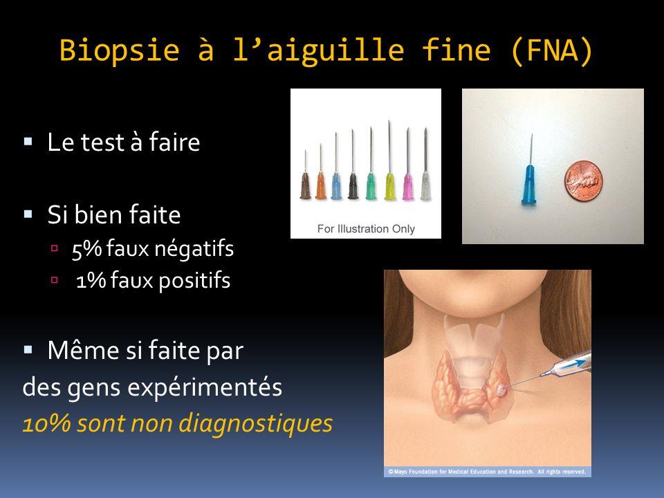 Biopsie à laiguille fine (FNA) Le test à faire Si bien faite 5% faux négatifs 1% faux positifs Même si faite par des gens expérimentés 10% sont non diagnostiques