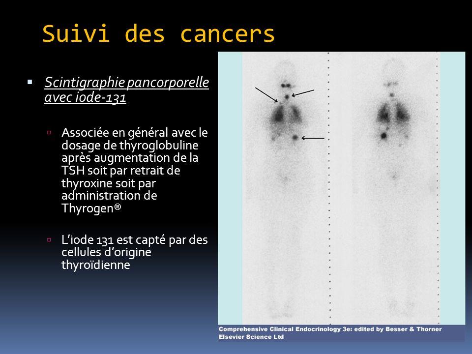Suivi des cancers Scintigraphie pancorporelle avec iode-131 Associée en général avec le dosage de thyroglobuline après augmentation de la TSH soit par retrait de thyroxine soit par administration de Thyrogen® Liode 131 est capté par des cellules dorigine thyroïdienne