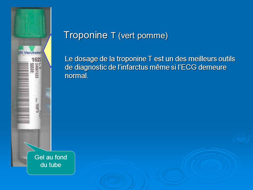 Troponine T (vert pomme) Troponine T (vert pomme) Le dosage de la troponine T est un des meilleurs outils de diagnostic de linfarctus même si lECG dem