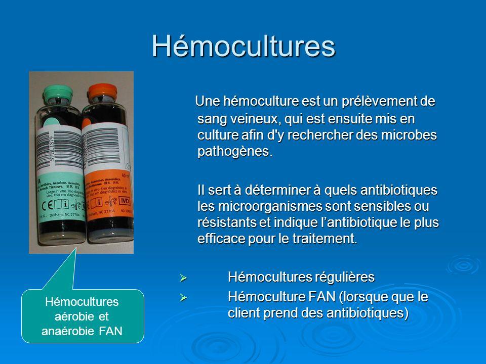 Hémocultures Une hémoculture est un prélèvement de sang veineux, qui est ensuite mis en culture afin d'y rechercher des microbes pathogènes. Une hémoc