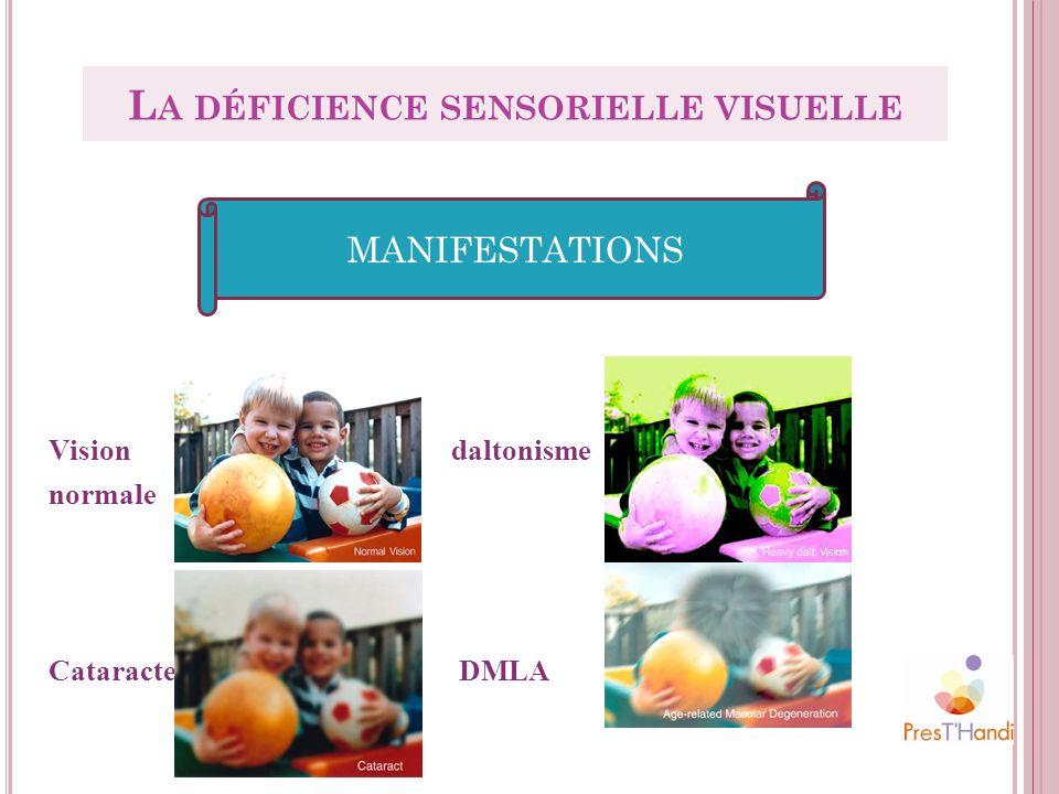 Vision daltonisme normale Cataracte DMLA MANIFESTATIONS L A DÉFICIENCE SENSORIELLE VISUELLE
