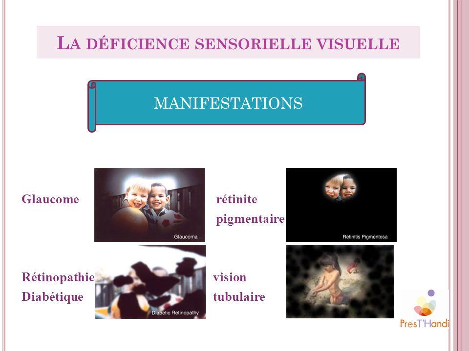 Glaucome rétinite pigmentaire Rétinopathie vision Diabétique tubulaire MANIFESTATIONS L A DÉFICIENCE SENSORIELLE VISUELLE