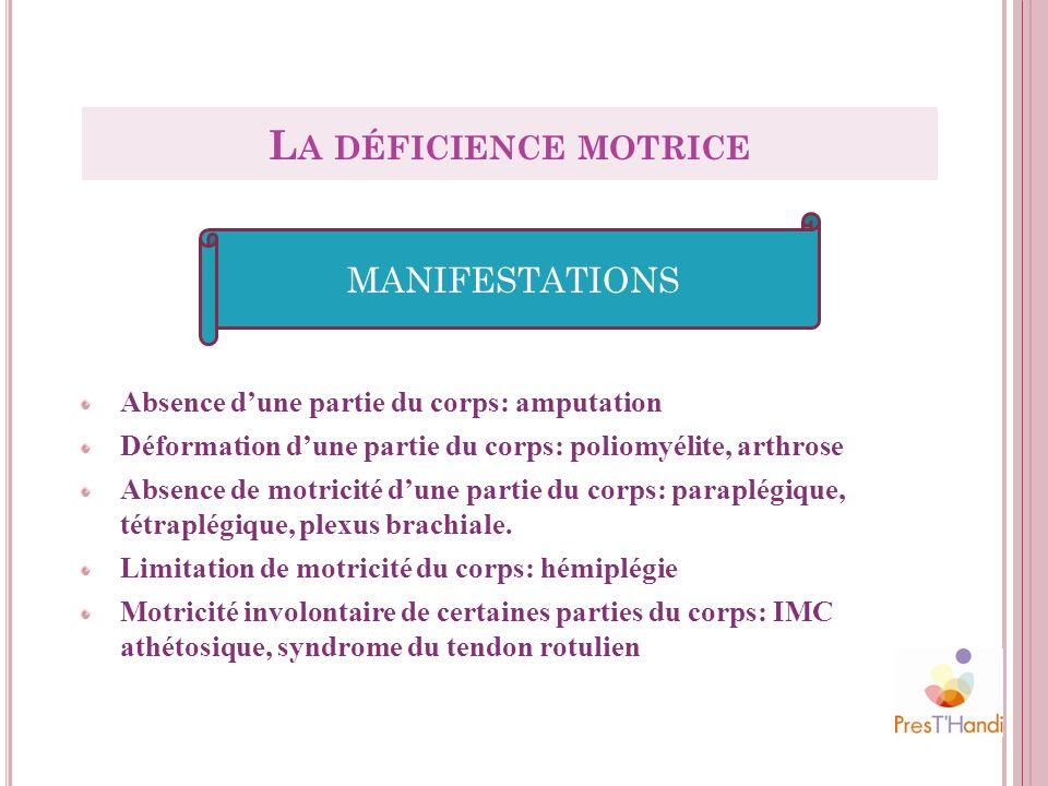 Absence dune partie du corps: amputation Déformation dune partie du corps: poliomyélite, arthrose Absence de motricité dune partie du corps: paraplégi