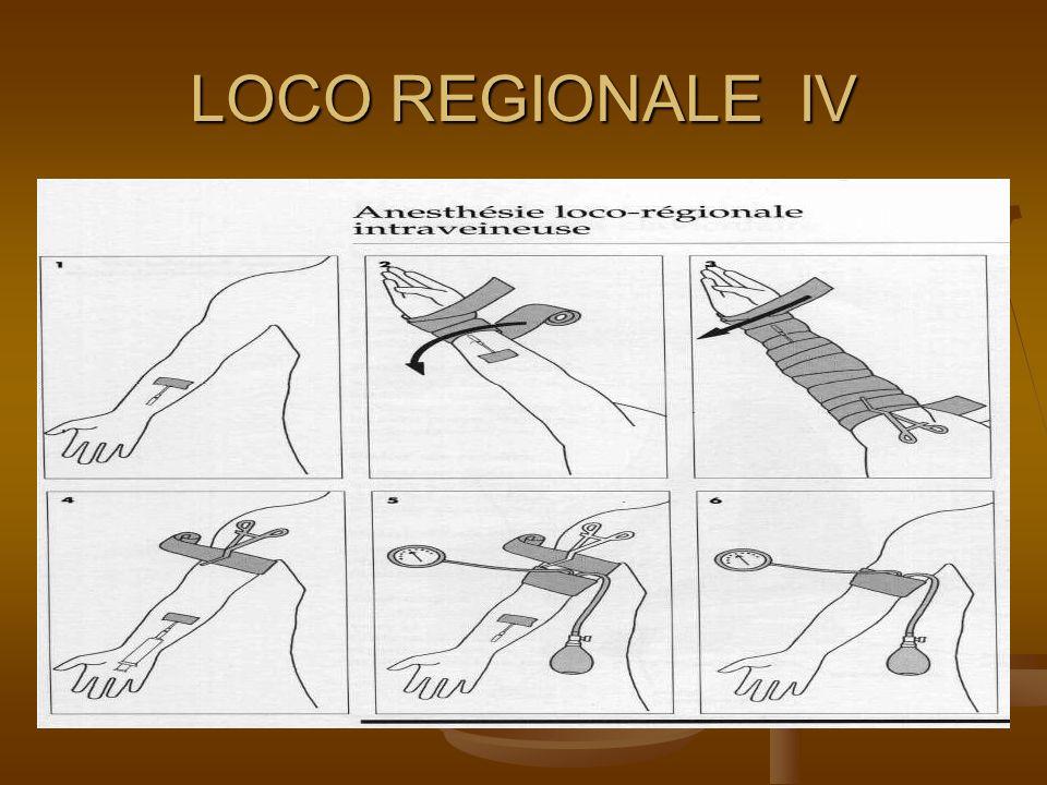 LOCO REGIONALE IV