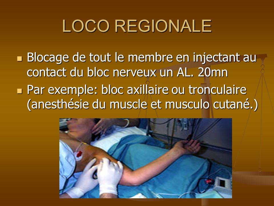 LOCO REGIONALE IV Injection dun AL imprégnant, par voie IV, un segment de membre isolé de la circulation générale par un garrot artériel, après quil ait été vidé de son sang.