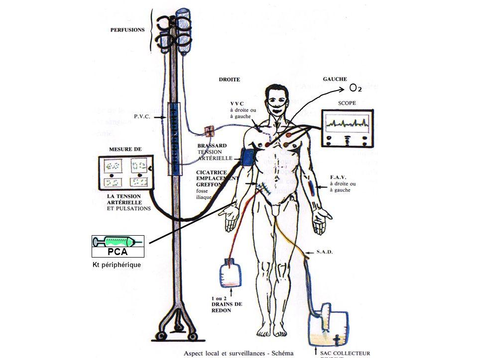 PCA Kt périphérique O2O2