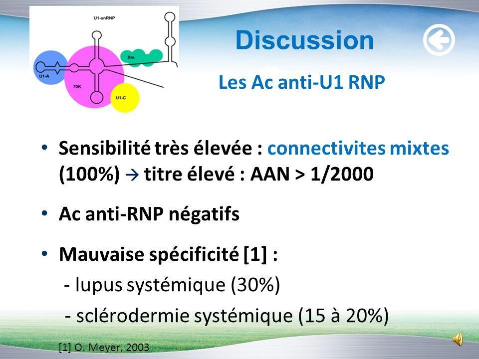 Diagnostic retenu Lupus systémique avec sd de Gougerot-Sjögren II: -Ac anti-RNP + : 30 % des lupus systémiques [1] -Myosite : association rare ; 4 à 1