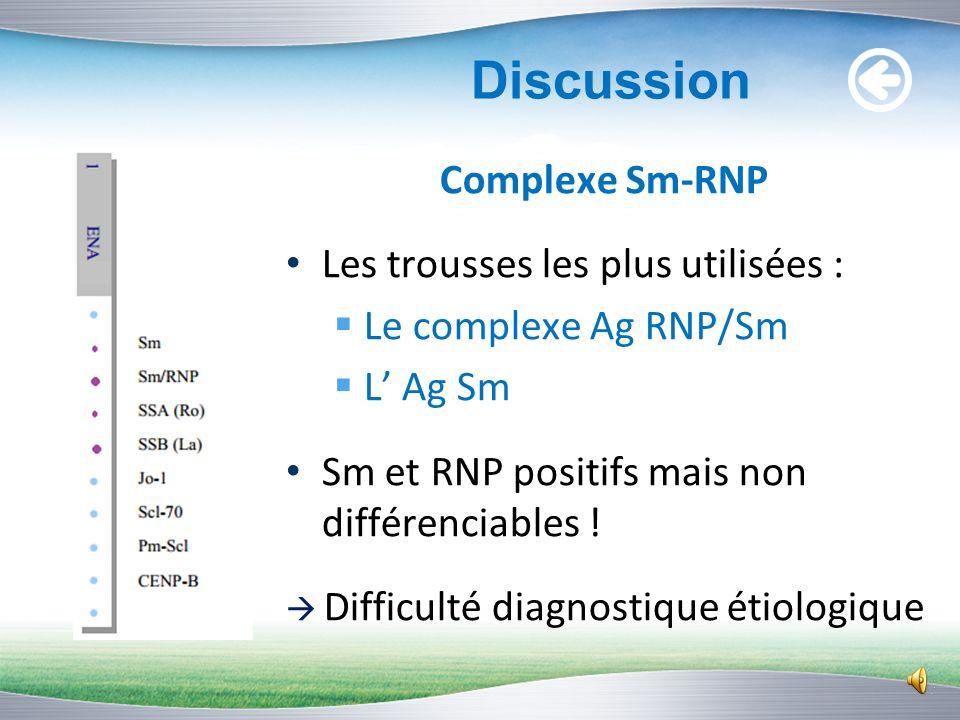 Discussion Les Ac anti-U1 RNP Sensibilité très élevée : connectivites mixtes (100%) titre élevé : AAN > 1/2000 Ac anti-RNP négatifs Mauvaise spécifici